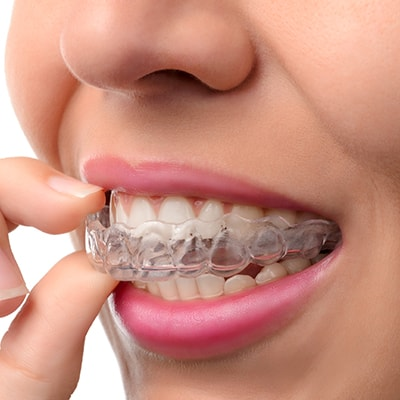 Dr. Alexander and Godwin can do orthodontic treatments, such as braces and Invisalign