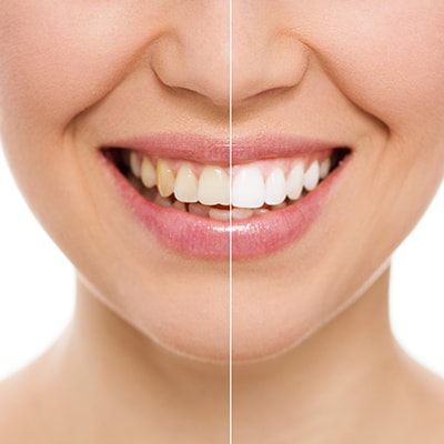 Professional Teeth Whitening is one of our Simpsonville Cosmetic Dentistry services.