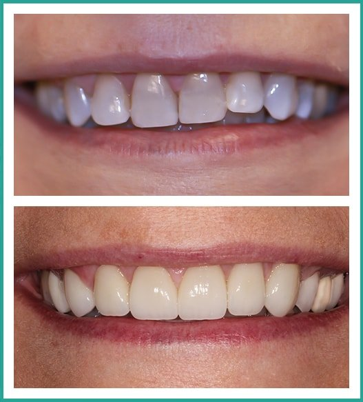Deborah's smile, before and after