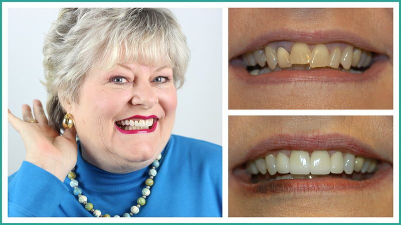 Judy's smile created by Dr. Godwin