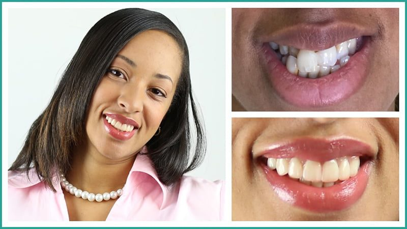 Tia's smile by our dentists in Simpsonville SC