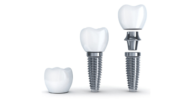The three components of a dental implant