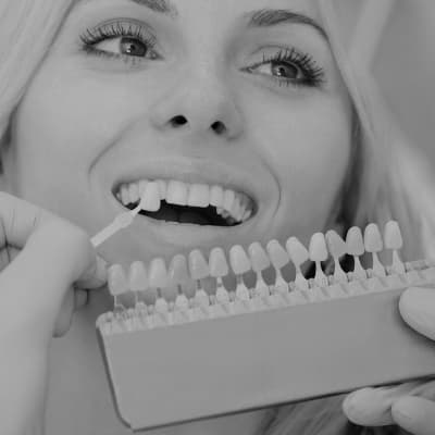 A woman getting her tooth shade matched for teeth whitening in Simpsonville