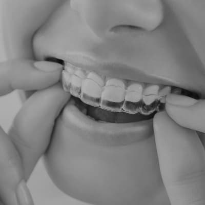 A close-up of a tooth whitening tray about to go in a mouth