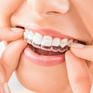 Close up of someone putting on their clear aligners at home